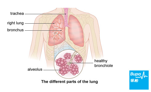 Learn about lung cancer bupa hong kong lung cancer ccuart Image collections