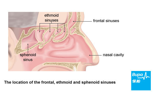Type of sinuses
