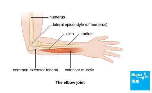 Tennis Elbow Health Dictionary Bupa Hong Kong